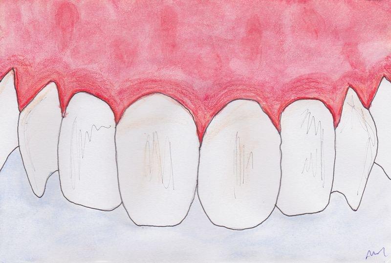 sympt mes de parodontie expliqu s par le cabinet verdy. Black Bedroom Furniture Sets. Home Design Ideas