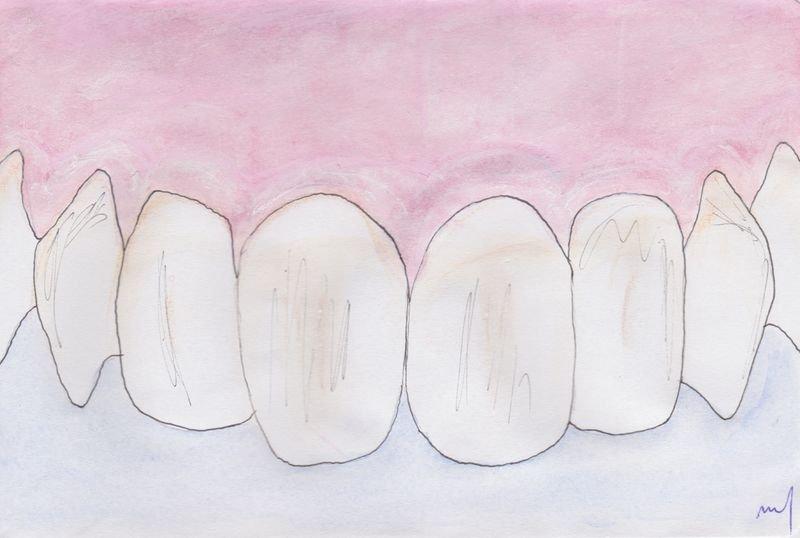 Symptômes De Parodontie Expliqués Par Le Cabinet Verdy
